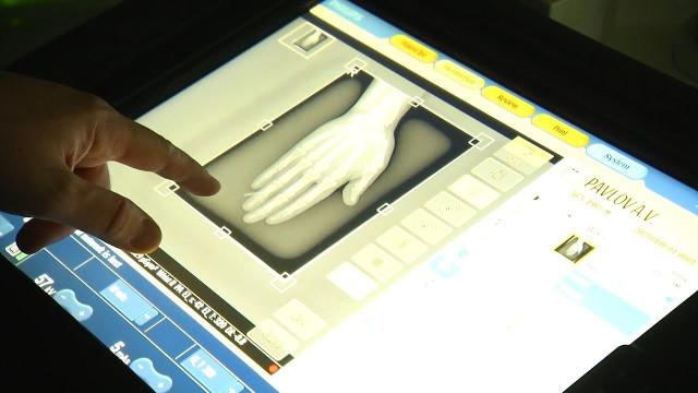 ВНовоуренгойской ЦГБ пациентов обследуют спомощью мобильных рентген-аппаратов