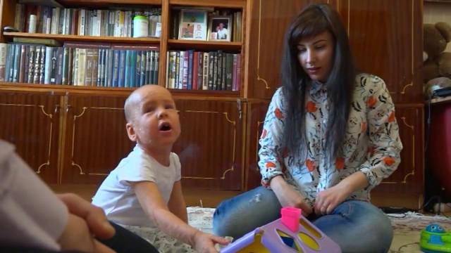 Двухлетний новоуренгоец Георгий Воробьев страдает ихтиозом инуждается вдорогостоящем уходе.